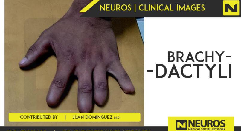 short fingers – Neuros | Medical Social Network