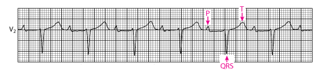 Cardiology MCQ – Neuros | Medical Social Network